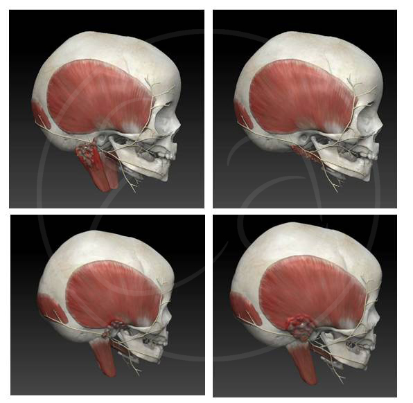 complications-of-mastoiditis-informational-3D-model