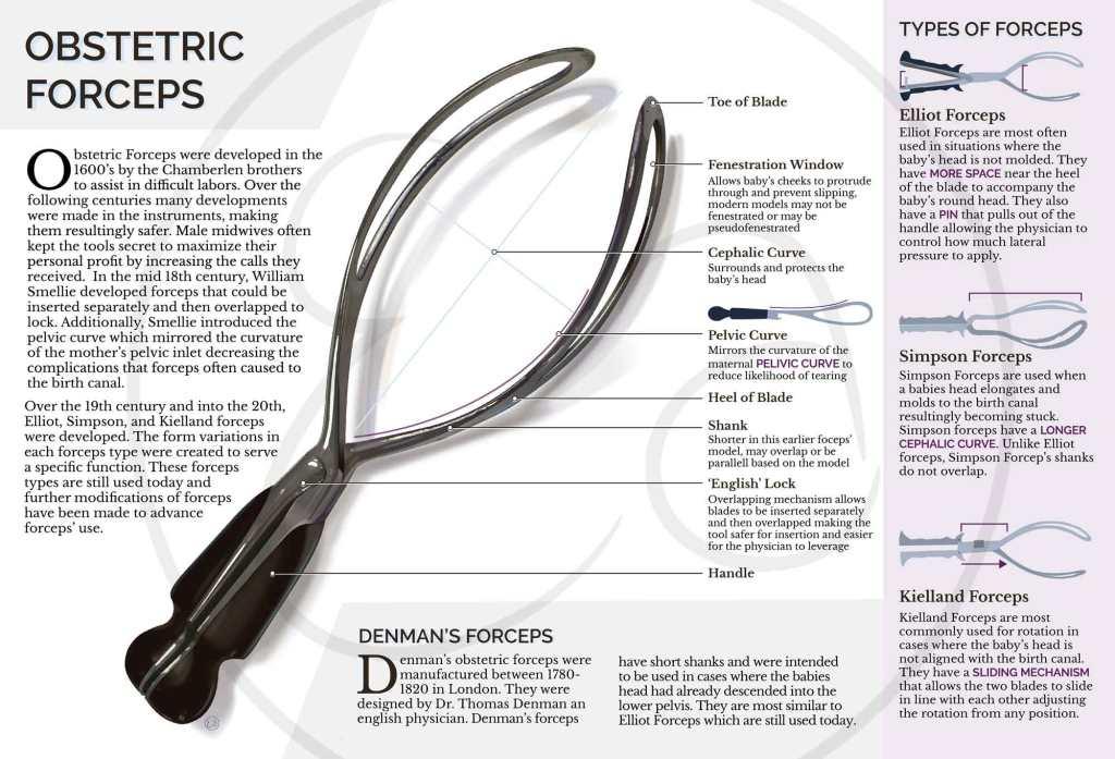obstetric-forceps-vector-art